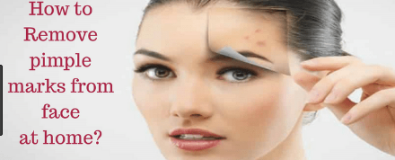How to remove face spots | Get Rid of Dark Spots